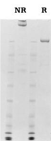 von Willebrand factor (vWF) sample