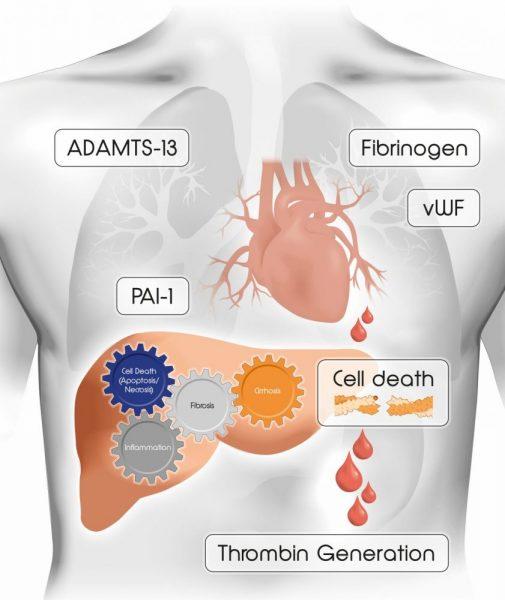 liver disease coagulation
