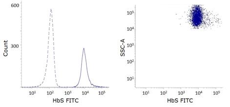 Hbs FITC Anti-Hemoglobin S